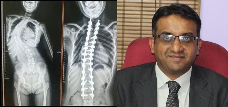 best bangalore spine surgeon